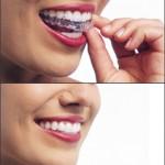 Ortodoncia-estetica-1