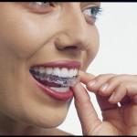 Ortodoncia-estetica-3