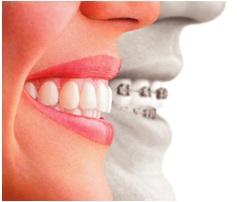 ortodoncia-fija